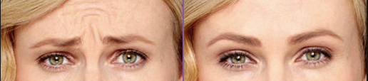 female before and after photos of frowning wrinkles treated with botox