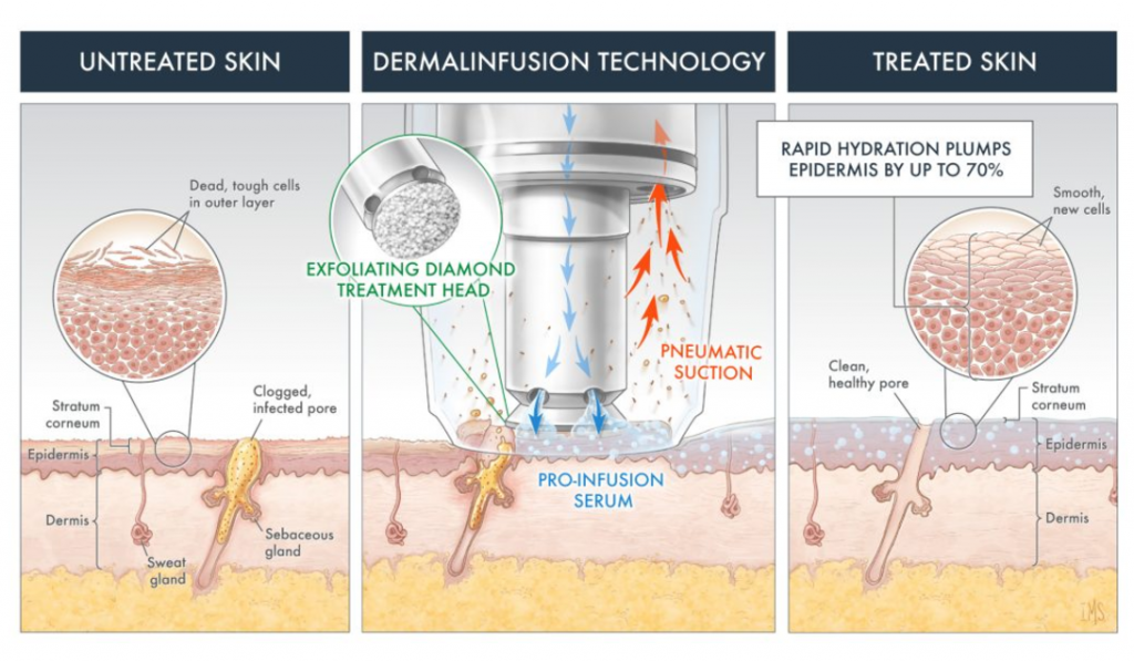 Illustration showing Dermalinfusion process