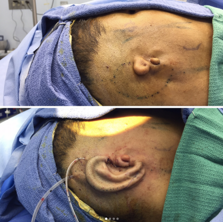 before and after microtia repair surgery