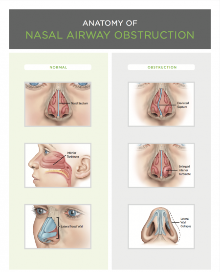 Nasal Airway - Rhinoplasty