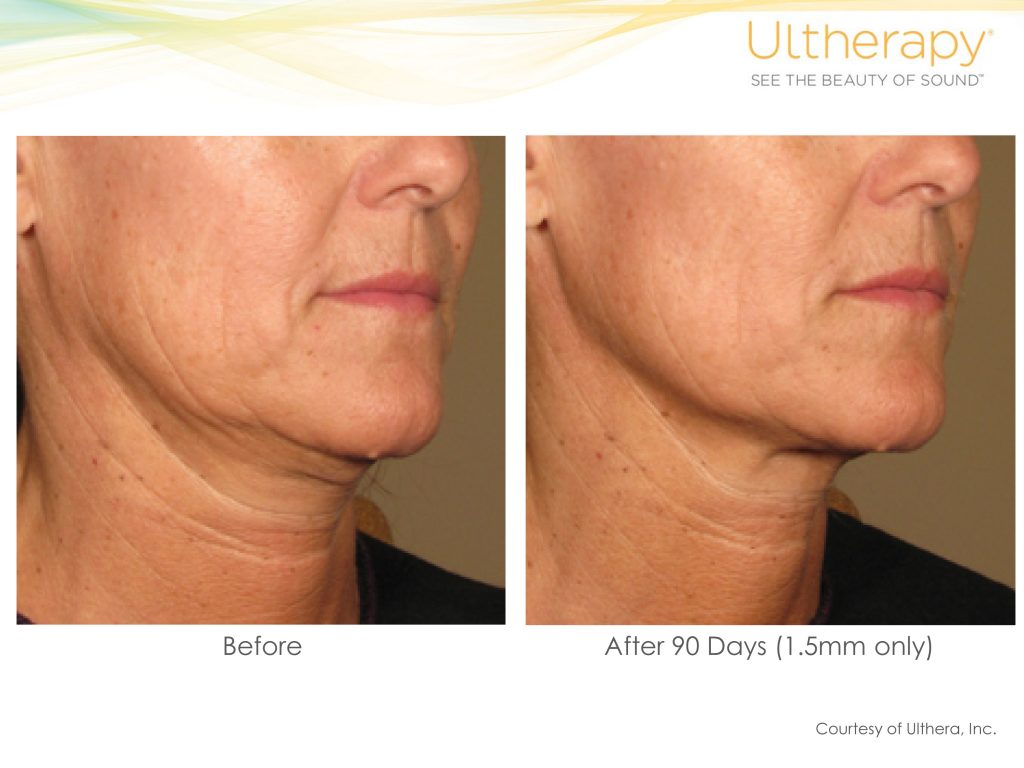ultherapy before and after 90 days photos