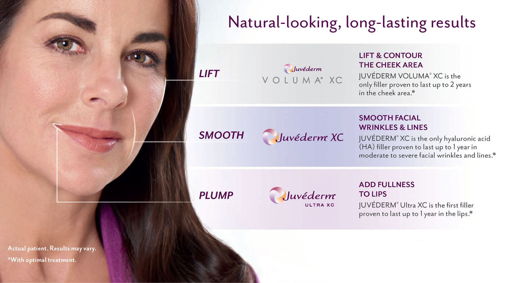 Illustration showing treatment areas for different juvederm fillers
