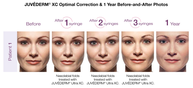 Series of photos showing results of juvederm injections at various stages for a year