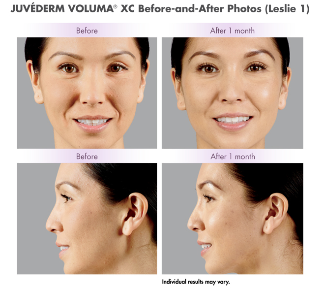Juvederm before and after photos front and profile views