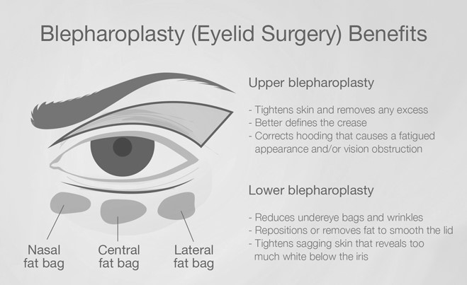 Benefits of Blepharoplasty