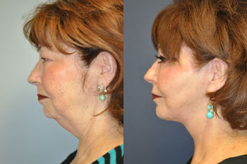 face and neck lift before and after photos of real patient cherrell