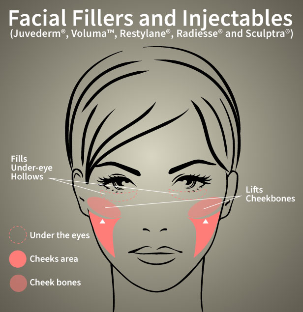 Facial areas benefiting from facial fillers and injectables, including the hollow area under the eyes and the cheekbone area.
