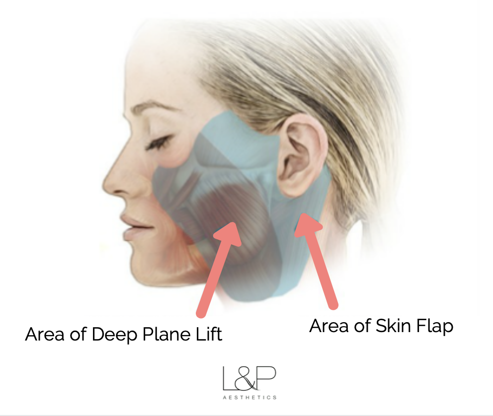 Illustration of the area of a deep plane facelift and the skin flap that curves around the ear.