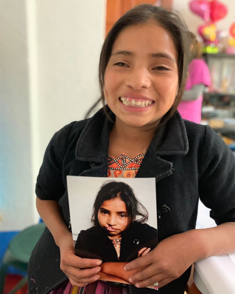 Smiling young woman holds a picture of herself before cleft lip surgery.