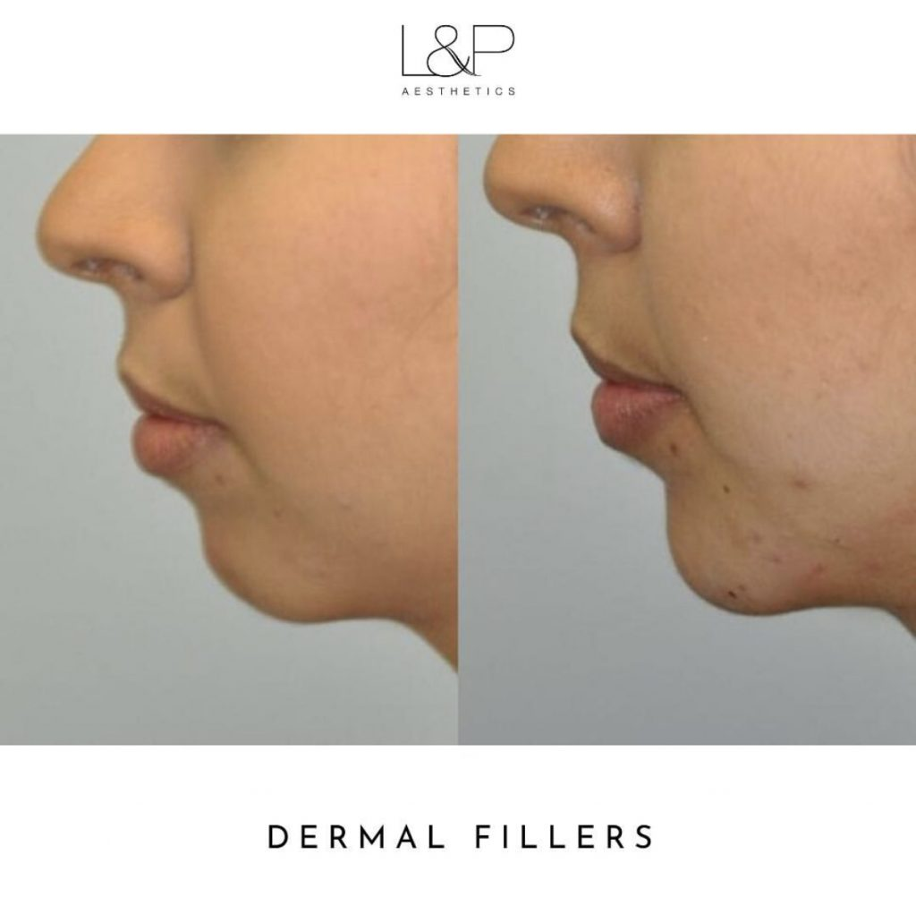 side view before and after photos of chin filler in a female