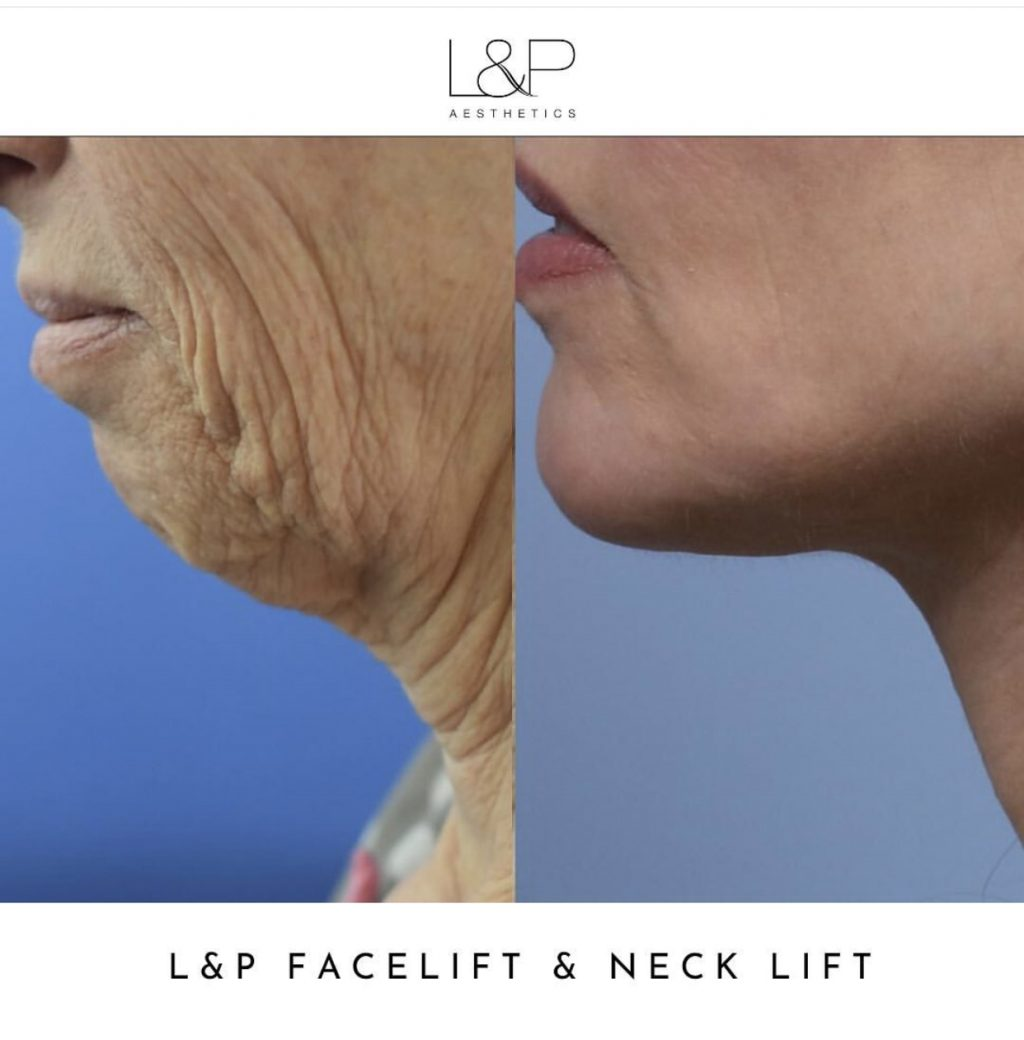 side view before and after photo of woman who underwent L&P facelift and neck lift