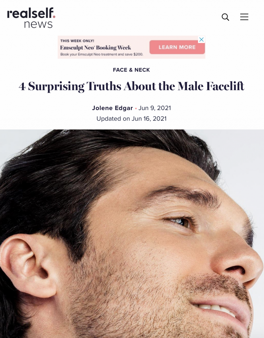 Real Self News article thumbnail with close-up image of a male's side face highlighting the beard and right ear.