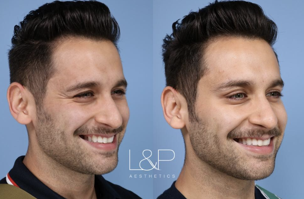 Baby Botox Before & After Of A Young Male